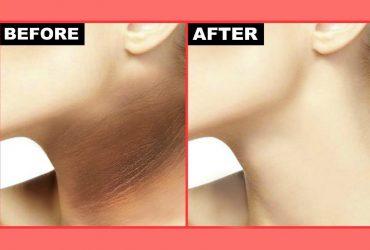 dark neck home remedy